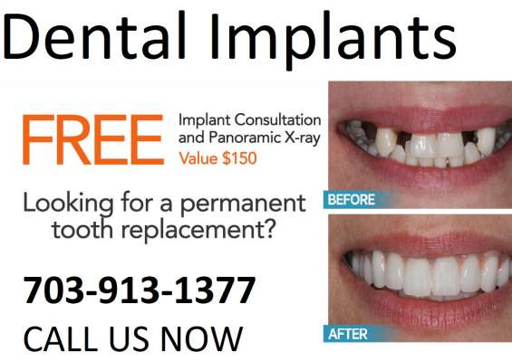 Dental implant dentistry in springfield, va