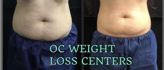 Reshape your body with cool sculpting in mission viejo